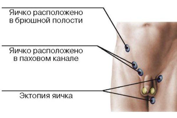 Эктопия яичка у мужчин