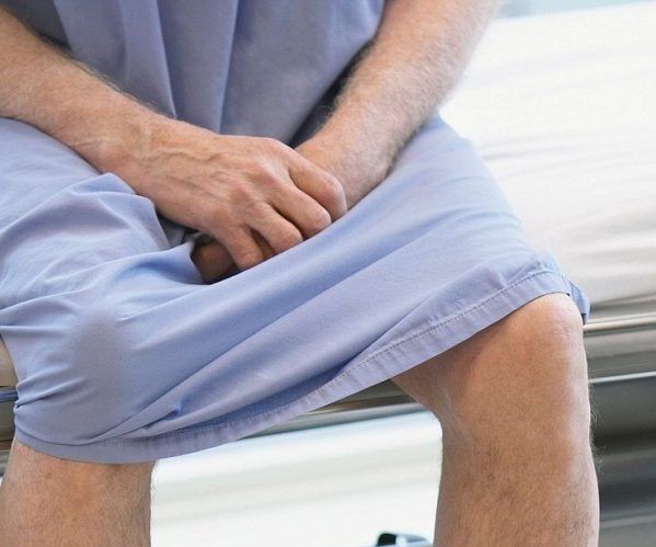 Фимоз у взрослых мужчин - симптомы, лечение, первые признаки, причины фимоза